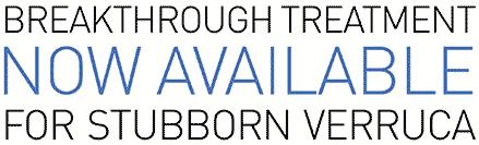 Breakthrough treatment now available for stubborn verruca